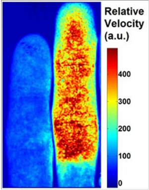 Lasers light up blood-flow dynamics image
